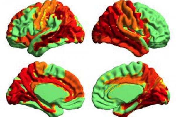 Higher states of consciousness identified among psychedelic drug users