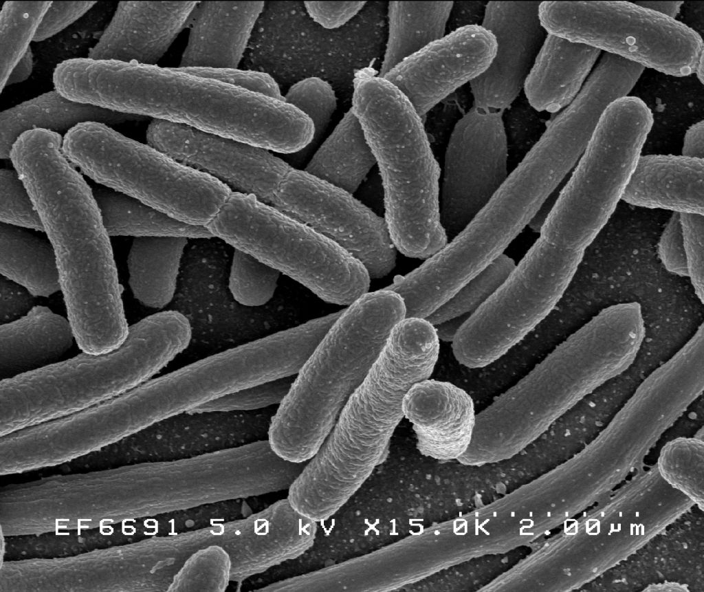 Health agency probes E.coli outbreak in polygamist Utah city