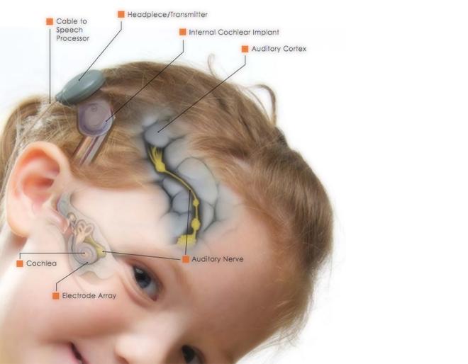 Deaf Children - Gephardt Daily