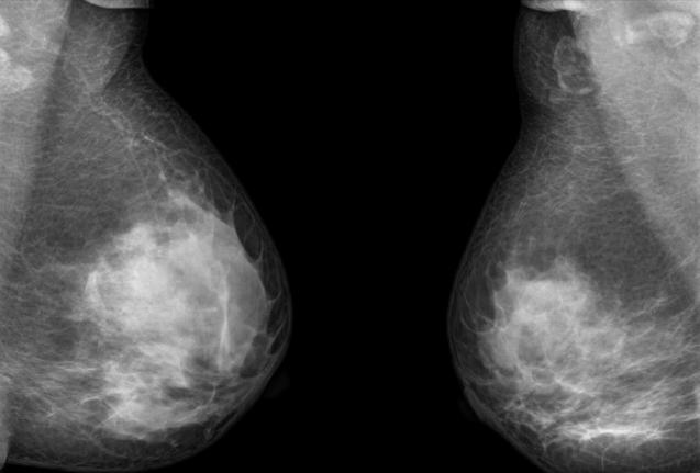 Genetic Tests for Breast Cancer