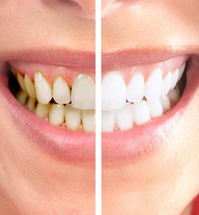 Plant Chemical Blocks Tooth Decay
