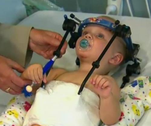 Baby's Head Reattached