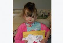 8-Year-Old Burn Victim