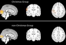 MRI Scans Reveal Christmas Spirit