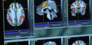 Reduced Blood Flow Seen In Brain