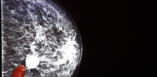 Women With Breast Cancer